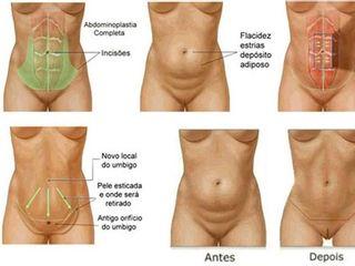 Diastase / Abdominoplastia