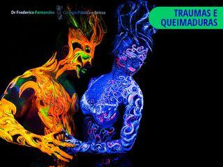 TRAUMAS E QUEIMADURAS