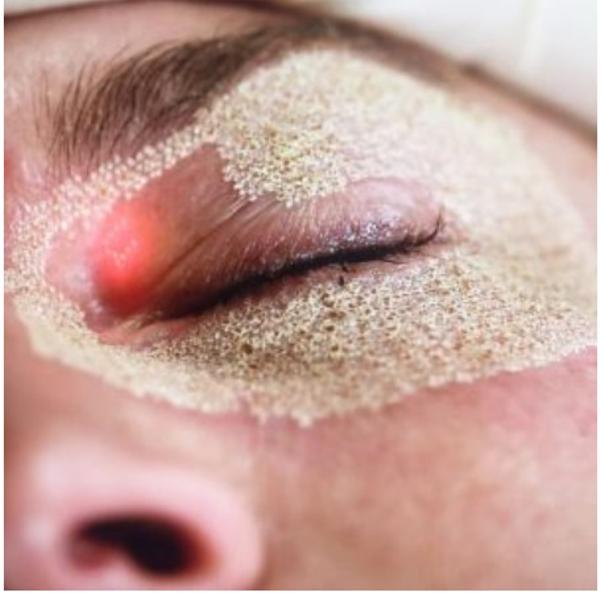 tratamento para a pele