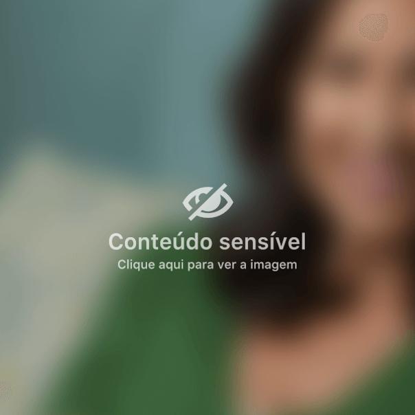 paciente de mentoplastia