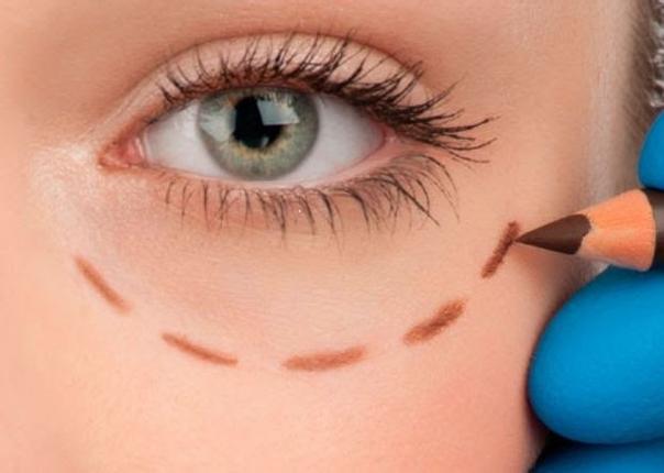 eliminar permanentemente olheiras