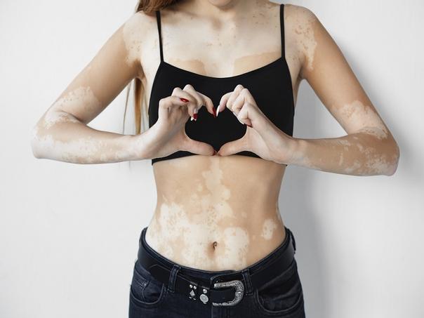 tratamento vitiligo
