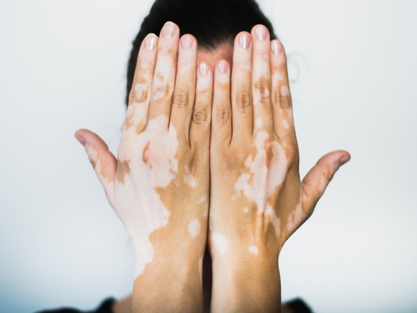 diagnóstico vitiligo