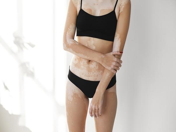 vitiligo é contagioso
