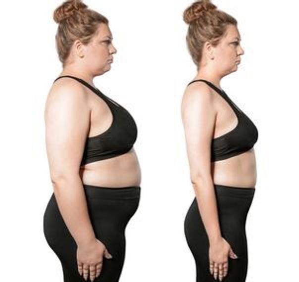 pessoas obesas