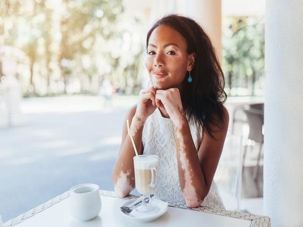causos do vitiligo