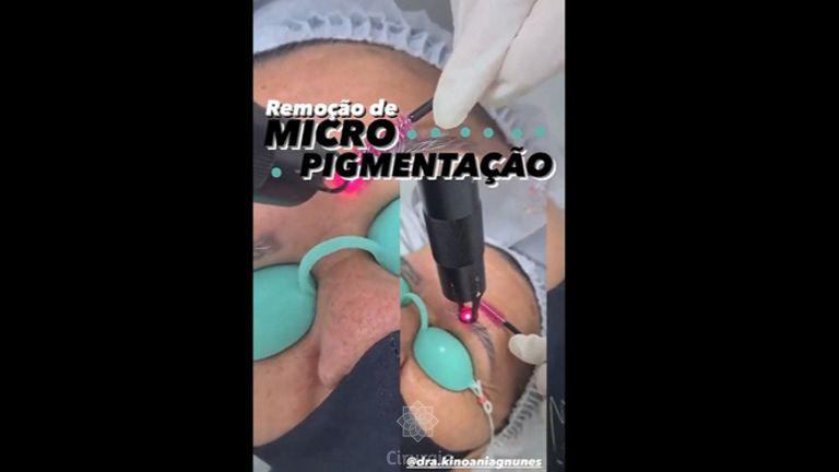 Micropigmentação - Bioestética