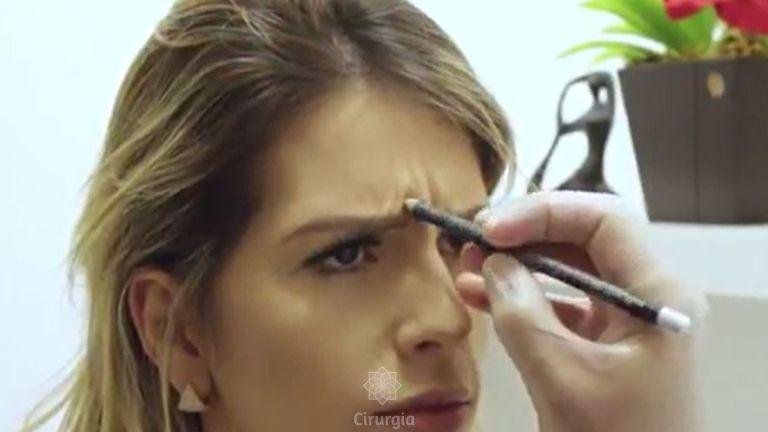 Botox V02