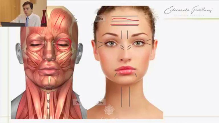 Botox: O que é, como funciona e para que serve.
