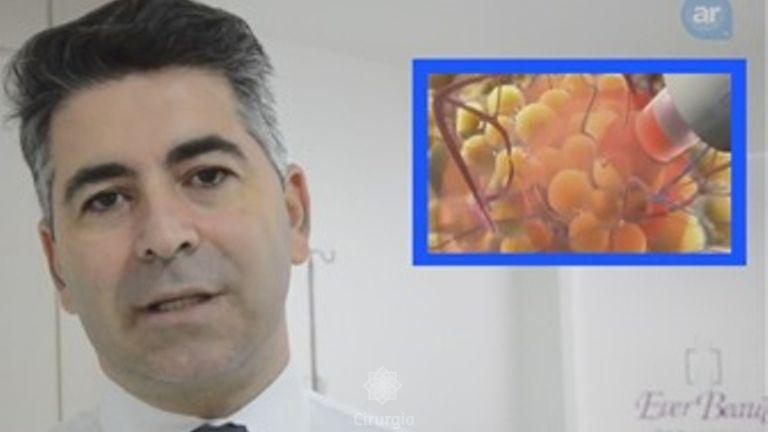 Dr. Urias Carrijo fala sobre a lipoaspiração a laser