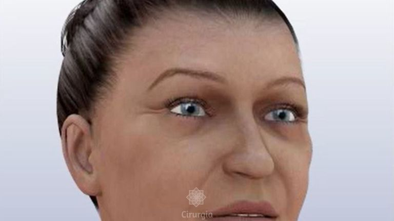 Como acontece o lifting facial?!