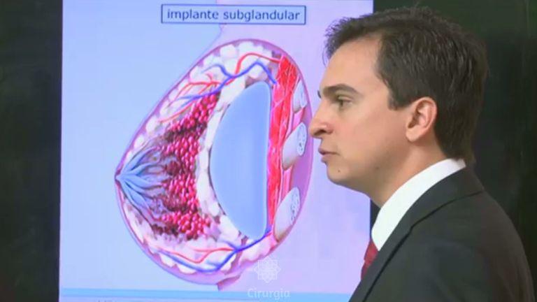 Implante de Silicone nos seios