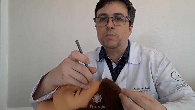 Angulação correta na implantação dos fios durante o Transplante Capilar - Dr Gustavo Mello