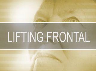 Lifting frontal