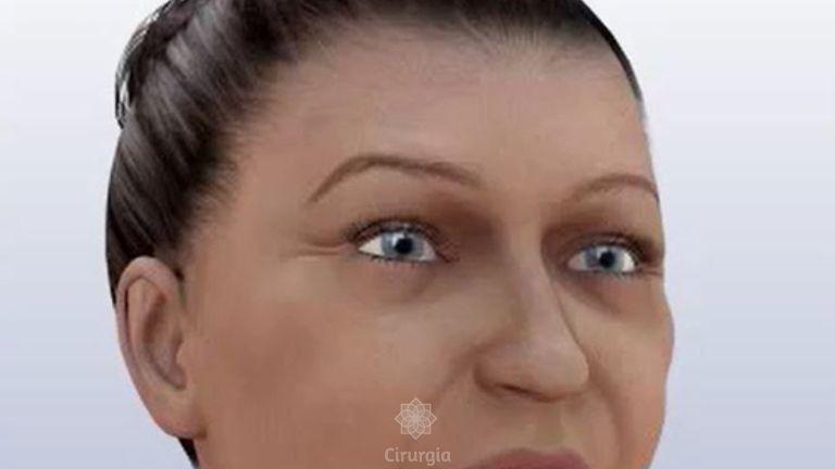 Ritidoplastia (Lifting ou Rejuvenescimento Facial)