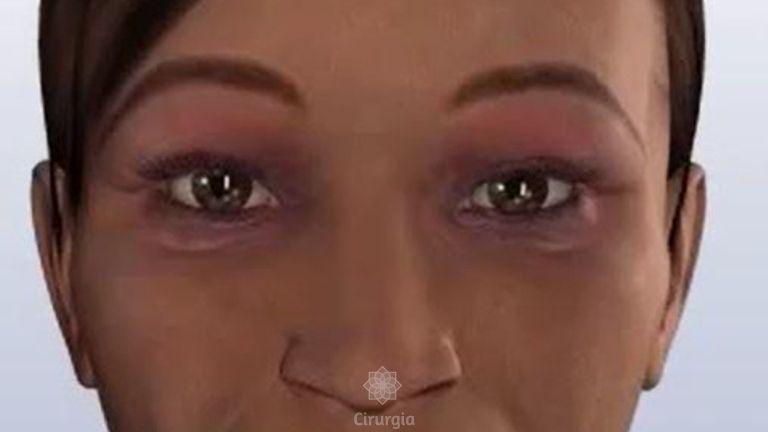 Blefaroplastia (Cirurgia das Pálpebras)