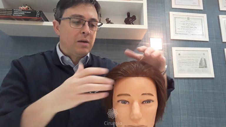 Transplante Capilar Dr. Gustavo Mello_ Quais são as diferenças no padrão de calvície entre os sexos