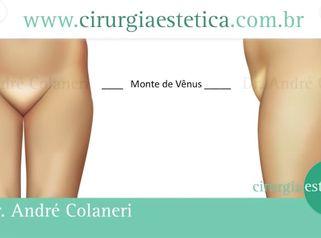 Redução do Monte de Vênus