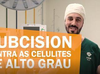 Subcision: contra as celulites de alto grau