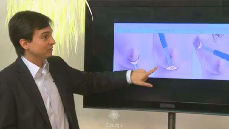 Quais são as formas de implantar silicone nos seios?