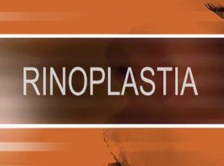 Rinoplastia - Dra. Mariana Fernandes