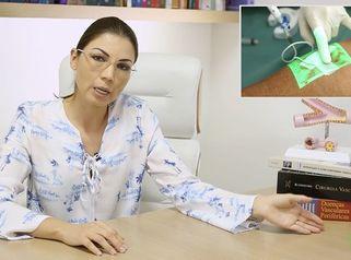 Tudo o que você precisa saber: Tratammento de varizes com espuma!