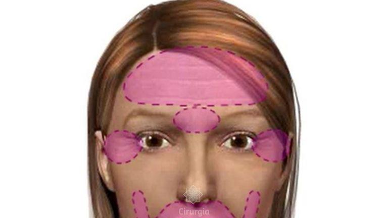 Diferentes tratamentos feitos no rosto